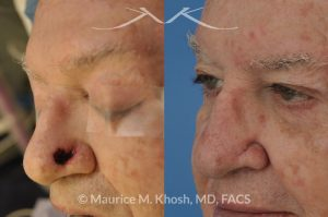 Photo of a patient before and after a procedure. Repair of Moh's defect of the left lower nose following excison of Basal Cell skin cancer. A local advancement flap was used for repair