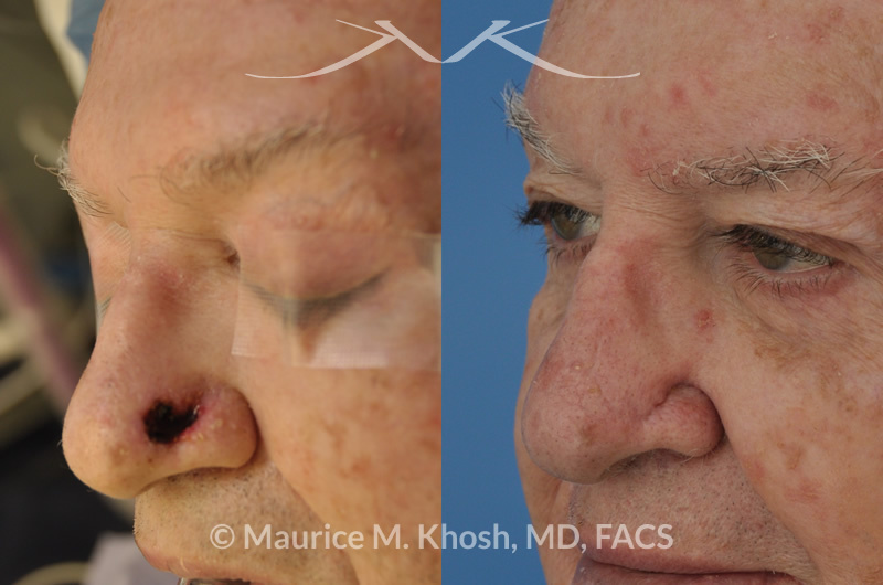 New York Facial Plastic Surgery Moh's Reconstruction Of Nose