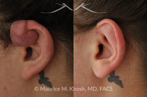 Photo of a patient before and after a procedure. Keloid of the upper aspect of the left ear due to piercing