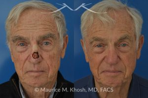 Photo of a patient before and after a procedure. Mohs repair of nose skin cancer with forehead flap