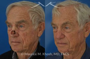 Mohs repair of nose skin cancer with forehead flap