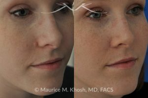 Photo of a patient before and after a procedure. Mole removal from cheek skin near the nose