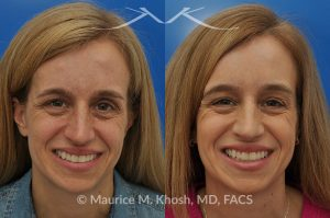 Photo of a patient before and after a procedure. Osteoma of the left forehead