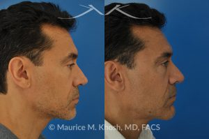 Repair nasal valve obstruction revision rhinoplasty