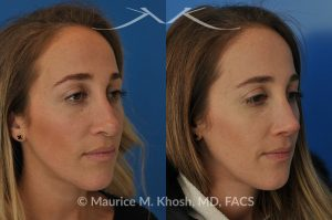 Photo of a patient before and after a procedure. Rhinoplasty to address a bulbous droopy and asymmetric nasal tip
