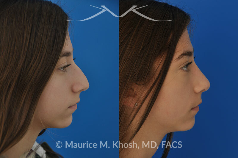 Rhinoplasty for a refined nose with smoth bridge tip elevation and tip narrowing