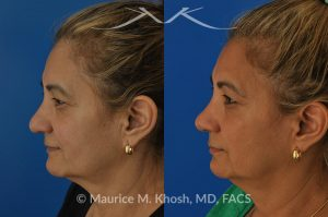 Rhinoplasty to straighten a crooked nose improve breathing and elevate the tip