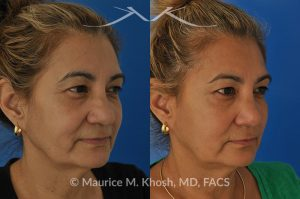 Photo of a patient before and after a procedure. Rhinoplasty to straighten a crooked nose improve breathing and elevate the tip