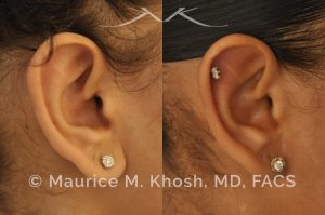 Photo of a patient before and after a procedure. Otoplasty - Earlobe reduction, otoplasty to shorten hanging earlobes