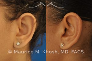 Earlobe reduction, otoplasty to shorten hanging earlobes