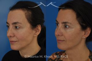 Photo of a patient before and after a procedure. FaceTite Morpheus