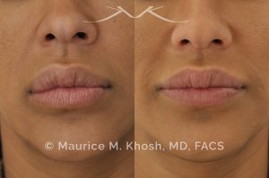 Photo of a patient before and after a procedure. Lip reduction - Lip reduction to improve the swollen appearing upper lip, which was caused by Silocone injection of the lips