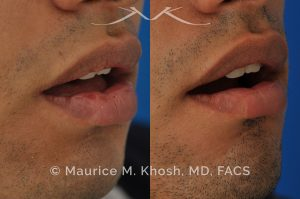 Photo of a patient before and after a procedure. Lip scar revision - Lip scar revision to improve a depressed scar in the right lower lip, near the corner