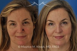 Photo of a patient before and after a procedure. Moh's repair of nose defect after removal of skin cancer. A bilobed flap was used for the repair