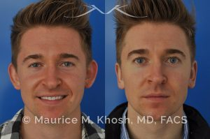 Photo of a patient before and after a procedure. Otoplasty - Ear pinning to push back excessively projected ears and flatten ears
