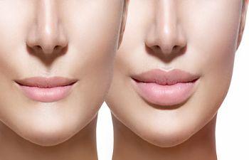 Lip Fillers New York NY