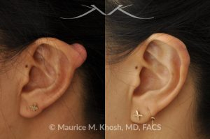 Photo of a patient before and after a procedure. Keloid scar removal from the upper part of the ear (auricle)