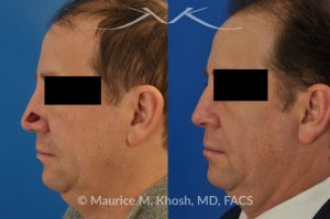Photo of a patient before and after a procedure. Repair of Moh's defect of the lower nose with local skin flap