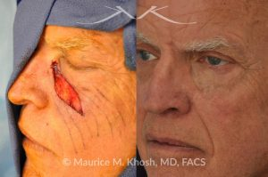 Photo of a patient before and after a procedure. Repair of melanoma excision defect in the cheek