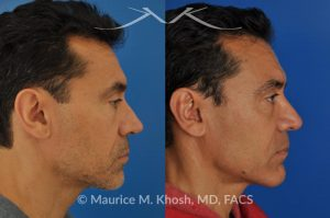 Photo of a patient before and after a procedure. Repair nasal valve obstruction revision rhinoplasty - This gentleman had previously undergone two rhinoplasty operations over 15 years ago. His nasal tip was pinched and obstructing his breathing, Cadaver rib cartilage was used to strengthen and support his external nasal valve. The nasal tip was slightly elevated.