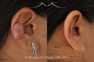 Photo of a patient before and after a procedure. Ear kleoid - scar removal the middle front part of the ear.