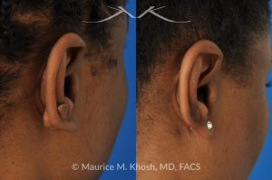 Photo of a patient before and after a procedure. Keloid - scar of the ear.