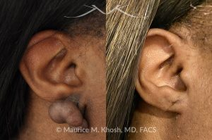 Photo of a patient before and after a procedure. Keloid - scar removal from the right earlobe.