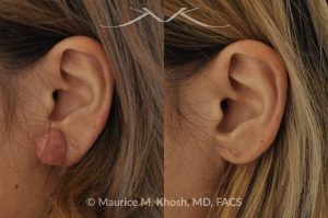 Photo of a patient before and after a procedure. Keloid - scar removed from the earlobe.