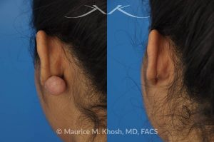Photo of a patient before and after a procedure. Large keloid - scar removed from the back of the ear.