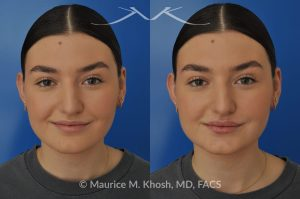 Photo of a patient before and after a procedure. Lip augmentation - This young lady was interested in enhancing the appearance of her lips. She was  noted to have small calibered and asymmetric upper lip. A hyaluronic acid filler (Volbella) was used to augment the upper and lower lips. Precise placement of the filler not only created fuller lips, it also allowed creation of symmetry in the upper lip.