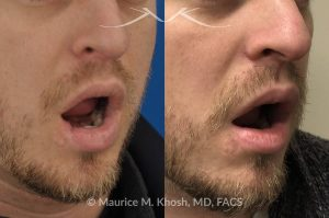 Photo of a patient before and after a procedure. Lip reconstruction - Lower lip reconstruction after dog bite.