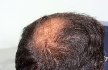 Hair Loss New York, NY