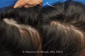 Photo of a patient before and after a procedure. Scalp scar revision - This 28 year-old lady had undergone scalp surgery which resulted in a wide and bald scar of the scalp which could not be fully camouflaged with her long hair. Scar revision of the scalp was performed inr Manhattan. The scar is more narrow and there is hair growth through the scar for further camouflage.