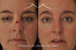Photo of a patient before and after a procedure. Mohs Skin reconstruction - This 51 year old underwent Mohs excision of Basal Cell Cancer of the skin of the bridge of her nose. Skin flaps from the bridge of the nose were used to perform the mohs skin defect repair. The result of the cancer reconstruction is only a barely visible scar in the center of the nose.