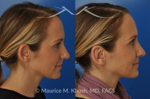 Photo of a patient before and after a procedure. Otoplasty  - This delightful 34 year old wanted to improve her protuberant ears. The left ear stuck out more than the right side. Otoplasty or ear pinning surgery was done in our office in Manhattan, under local anesthesia. Both ears were pushed back to a natural position. Symmetry between the position of two ears was achieved.