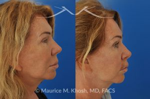 Photo of a patient before and after a procedure. Lip Lift - This 65 year old desired a rejuvenated upper lip. She noted the upper lip to be excessively long, covering her upper teeth and giving her a tired and aged appearance. Lip fillers only exacerbated the problem. The post op photos were obtained only one week after surgery, during the suture removal visit. Although there is swelling and bruising from the recent operation, the upper lip is already looking improved.