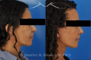 Photo of a patient before and after a procedure. Facelift - This delightful 57 year old desired a younger looking and natural enhancement of her face. Facelift surgery in New York was performed under local anesthesia as an office procedure. The before and after photos demonstrate her results 2 months after surgery. Notes the improved contour of the chin and jowls. The heavy-looking and squared appearing lower face has been transformed to a heart shaped lower face. The new and improved look is complementary and natural appearing. The patient is thrilled with her beautiful results.