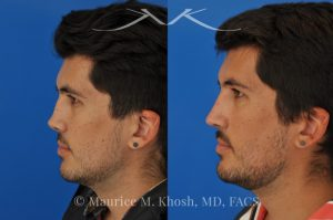 Photo of a patient before and after a procedure. Revision rhinoplasty for cleft lip nose deformity - This 24 year-old with congenital cleft lip nasal deformity had previously undergone surgery on his nose. As a result of that previous surgery the nose tip had become overly up-turned and the middle vault of the nose was pinched appearing. The right nostril base was depressed relative to the normal left side. Revision rhinoplasty in New York was performed with rib cartilage which was harvested from the patient's own chest. The 7 month results (on the left side) show a dramatic improvement in regards to the shape and position of the nasal tip, middle vault of the nose, and the position of the right nostril base.