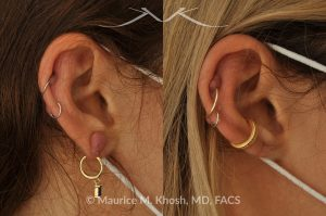 Photo of a patient before and after a procedure. Keloid of earlobe - This 40-year-old had developed a keloid in the right earlobe, after a piercing. The keloid was removed, leaving a very fine scar in the earlobe.