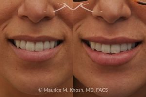 Photo of a patient before and after a procedure. Lip Augmentation - This 33-year-old young woman was interested in a beautiful and natural augmentation of her lips. She wanted more voluptuous and sexy lips without appearing puffy or over-done. Hyaluronic acid filler was used to give her a subtle but noticeable improvement.