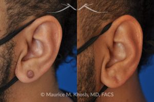 Photo of a patient before and after a procedure. Kleoid ear - This 38 year-old underwent excision of a left earlobe keloid. The post op pictures show an imperceptible scar after keloid removal.
