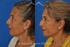 Photo of a patient before and after a procedure. Facelift and Neck lift - This delightful 68-year old underwent facelift and neck lift surgery to rejuvenate the lower face and neck area. The SMAS facelift allowed resolution of her jowls and sagging cheeks. The neck lift procedure helped to improve the sagging neck, and the skin hanging in the neck. She is ecstatic with the beautiful and natural results of her facelift and neck lift.