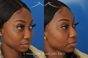 Photo of a patient before and after a procedure. This delightful patient was interested in improving the appearance of her nose without surgery. She disliked the droopy tip which became even more droopy when she smiled. She wanted more definition in the tip. Filler injections allowed us to improve the nasal tip position and shape, while a small injection into the bridge of the nose helped to eliminate the small hump. The patient was ecstatic with the results of her liquid rhinoplasty.