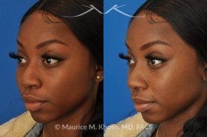 Photo of a patient before and after a procedure. Liquid rhinoplasty - This delightful patient was interested in improving the appearance of her nose without surgery. She disliked the droopy tip which became even more droopy when she smiled. She wanted more definition in the tip. Filler injections allowed us to improve the nasal tip position and shape, while a small injection into the bridge of the nose helped to eliminate the small hump. The patient was ecstatic with the results of her liquid rhinoplasty.