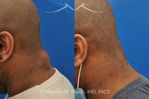 Photo of a patient before and after a procedure. Lipoma - 44 year old with recurrent lipoma in the posterior aspect of the neck requested lipoma removal in our New York office. The right side photos demonstrate the successful outcome of surgery 4 months post op.