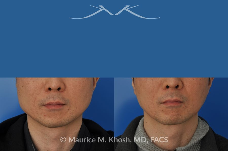 A man's face with a blue strip of eyes - Botox For Masseter Reduction
