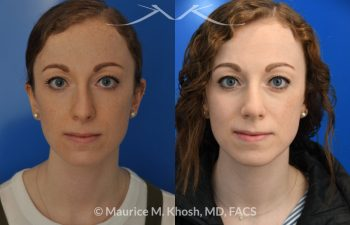 Female patient before and after Nasal hump reduction and tip elevation
