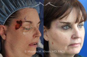 Photo of a patient before and after a procedure. Mohs - This delightful patient was referred for repair of a Moh's defect following excision of a basal cell cancer from the right temple and forehead. Repair was accomplished with a flap repair. The post op results demonstrate her at 6 months following repair.