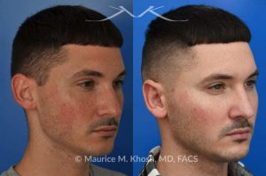 Photo of a patient before and after a procedure. Otoplasty - This 26 year-old requested consultation regarding earpinnig and reducing the size of the left ear. He found both ears to be sticking out too far, and noted the left ear to be larger than the right side. Otopalsty was performed under local anesthesia in our Manhattan office. Both ears were pushed closer to the scalp. The left ear was shortened.