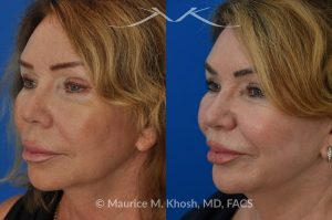 Photo of a patient before and after a procedure. Lip Lift - This 65 year old desired a rejuvenated upper lip. She noted the upper lip to be excessively long, covering her upper teeth and giving her a tired and aged appearance. Lip fillers only exacerbated the problem. The post op photos on the right side show her results at 6 months after surgery.
